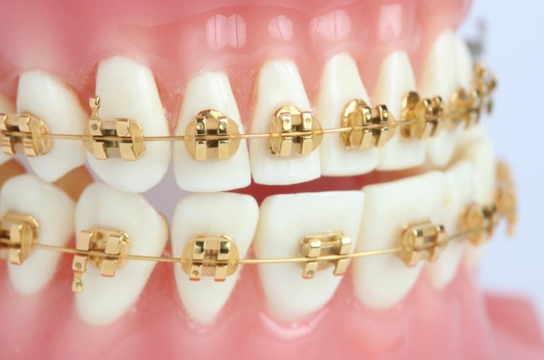Aparatologia dental y aparatos