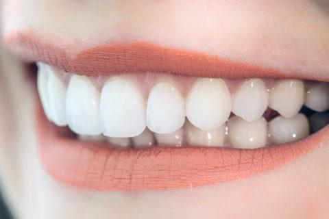 carillas dentales oviedo