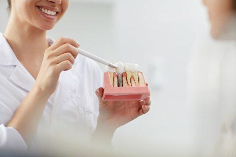 implantes y blanqueamientos dentales
