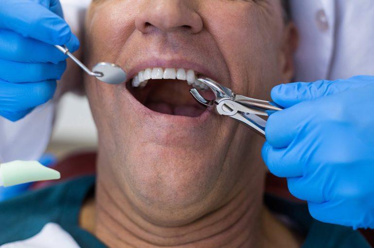 extraccion dental o exodoncia